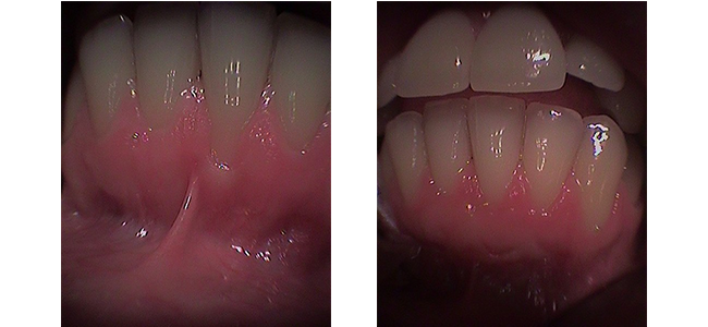 Recession and Tissue Graft