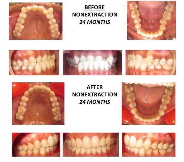 Before&After Dentist Reston, VA