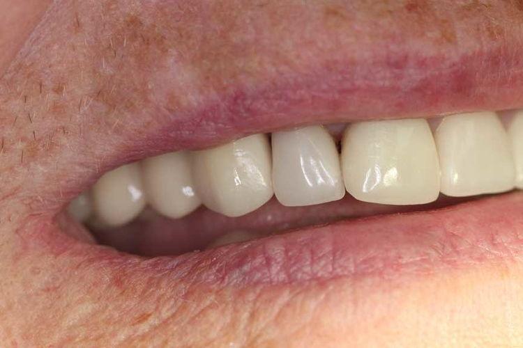 implant 2