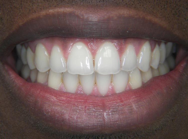 Smile Gallery Invisalign