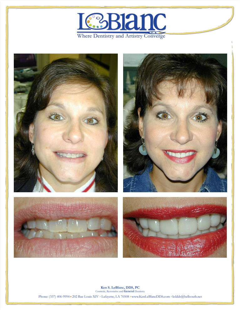 leblanc before and after cosmetic dentistry