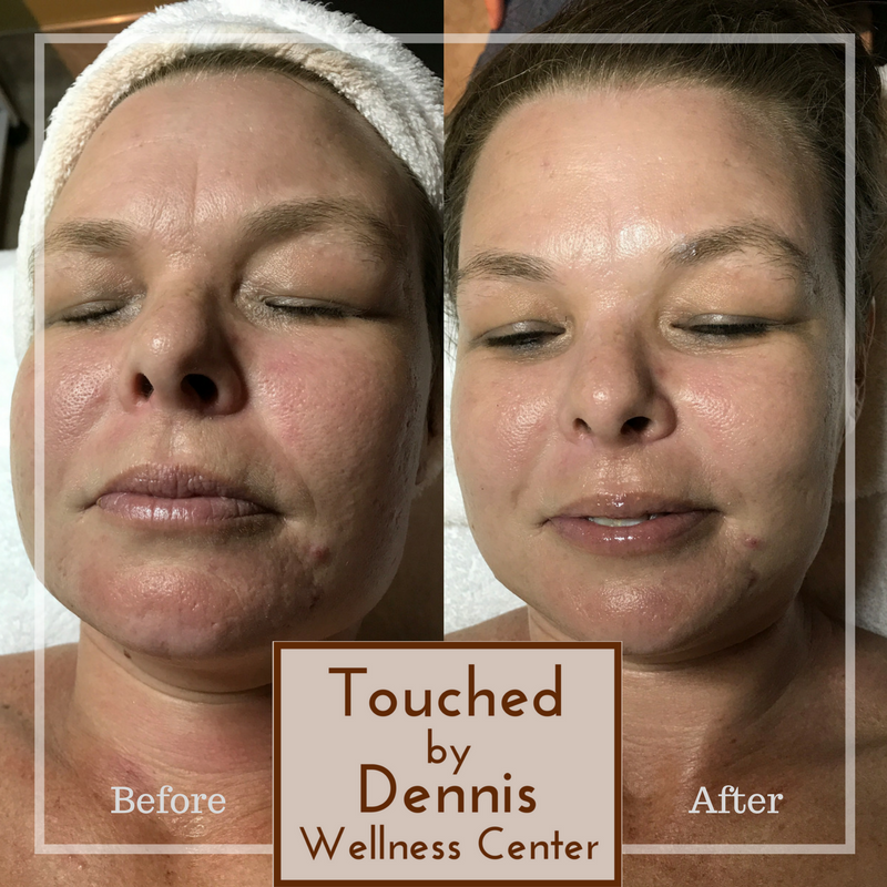 Full Touch Facial w/LED