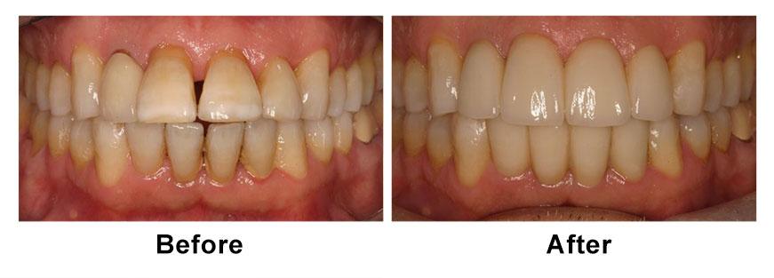 TeethBandA